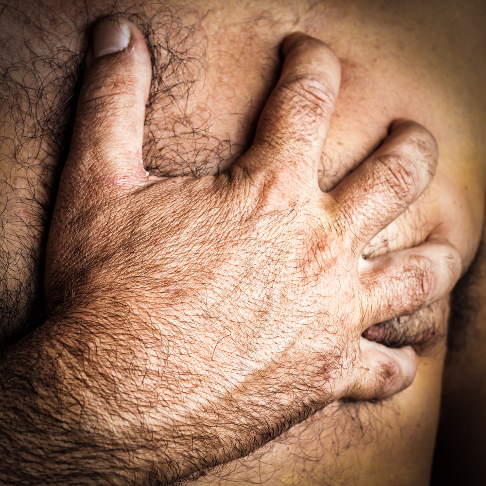 Possible Association Between Obesity and Male Breast Cancer Discovered