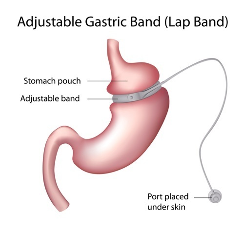 Outcomes Are Improving For Gastric Band & Bypass Surgeries Over Time