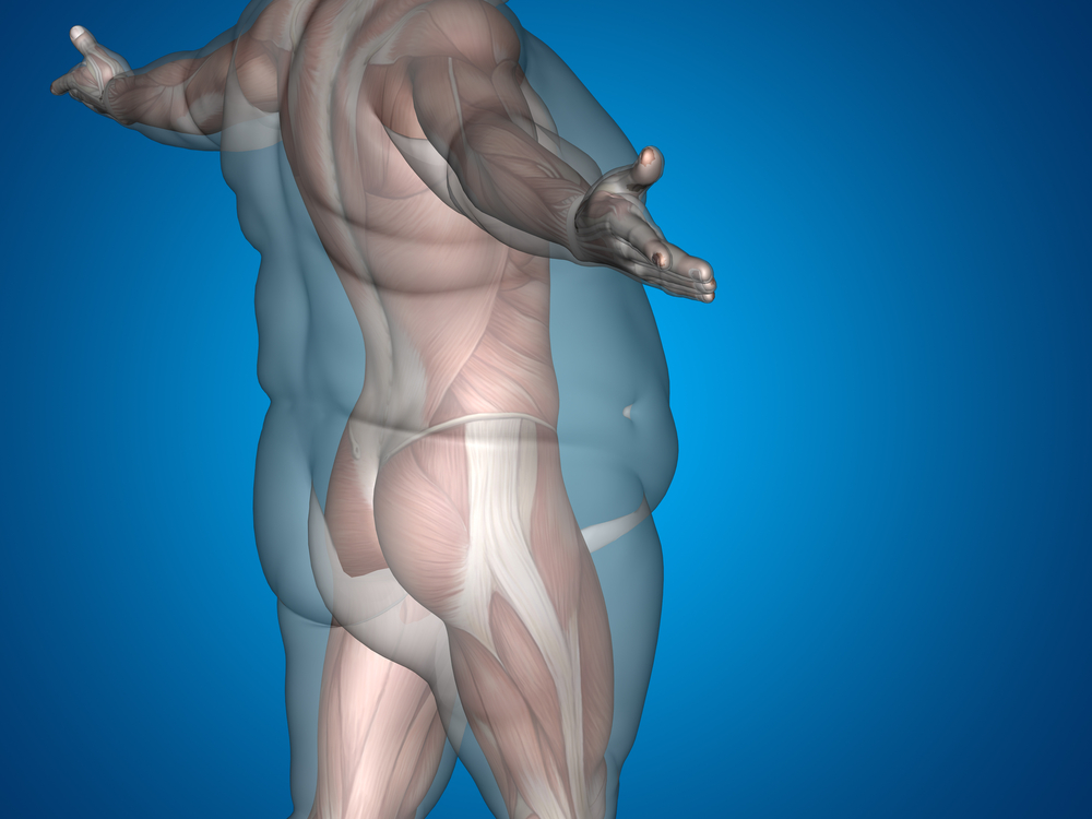Weight Loss Surgery Improves Testosterone Levels in Obese Men, Without Hormonal Replacement