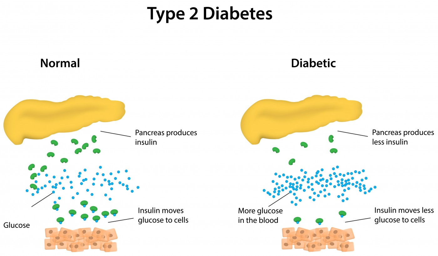 Type 2 Diabetes Patients Should be Given Priority for Obesity Surgery, Regardless of BMI