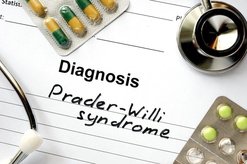 Prader-Willi Syndrome
