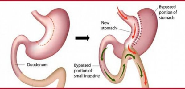 Biliopancreatic Diversion With Duodenal Switch Cost