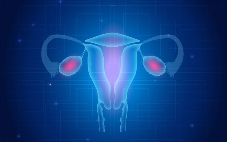 uterine cancer and obesity